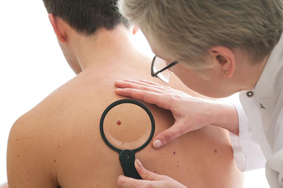 evitar cáncer de piel