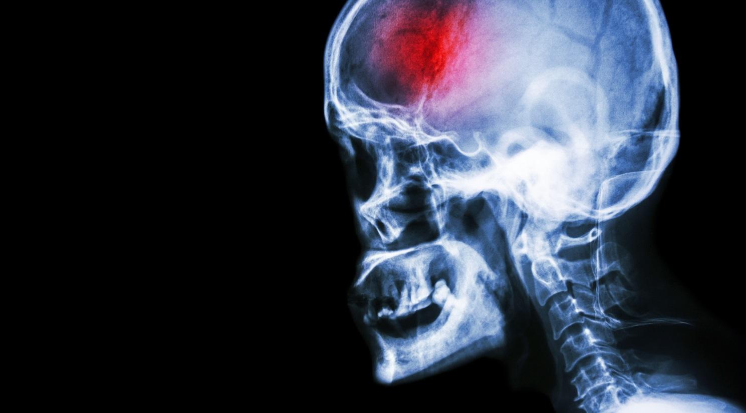 Hemorragia cerebral por caída de anticoagulantes