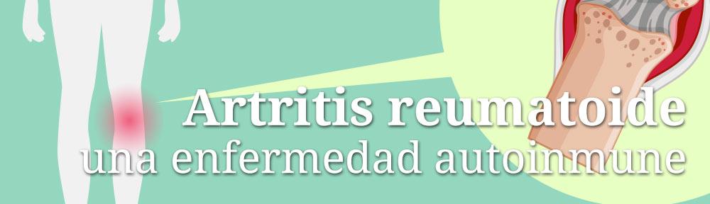 Artritis reumatoide, una enfermedad autoinmune