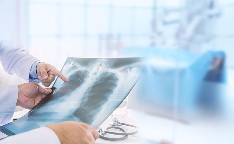 Los signos y síntomas del cáncer de pulmón
