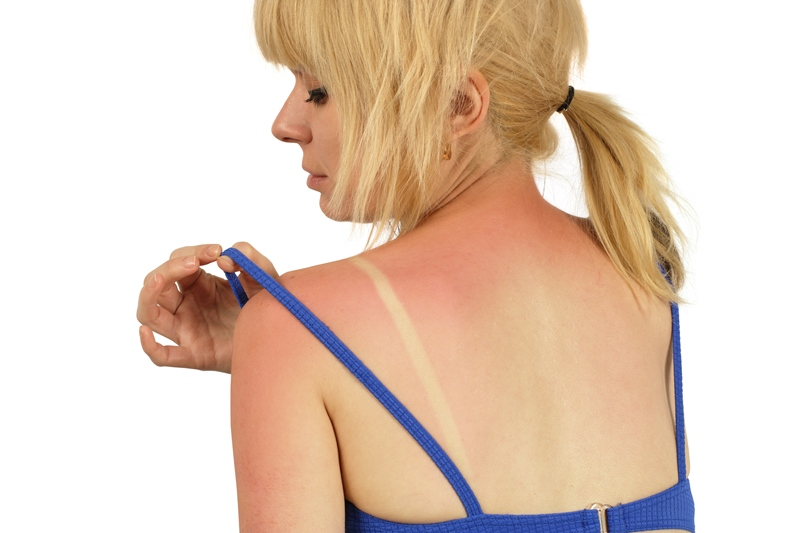 Tomar el sol: 8 cosas que los dermatólogos quieren que sepas