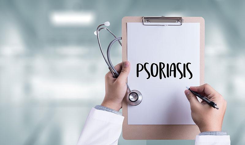 Psoriasis, una enfermedad que afecta a más de un millón de personas en España
