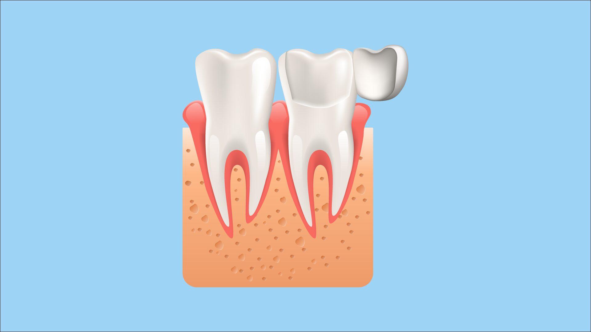 Tratamientos de estética dental: las carillas dentales